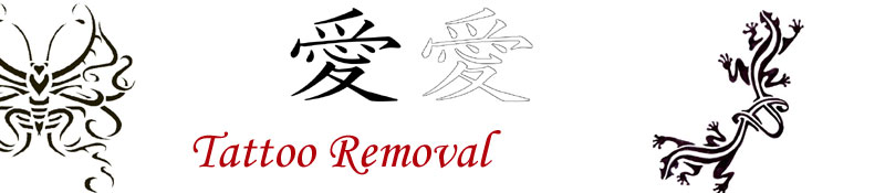 Tattoo Removal Surgery Procedures